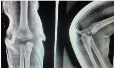 结构或软组织的严重损伤