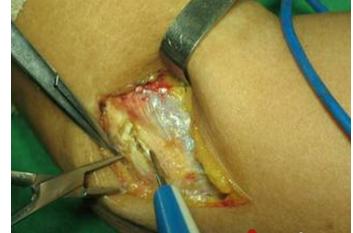肘关节松解手术步骤